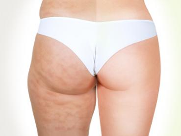 Anti-Cellulite Programm